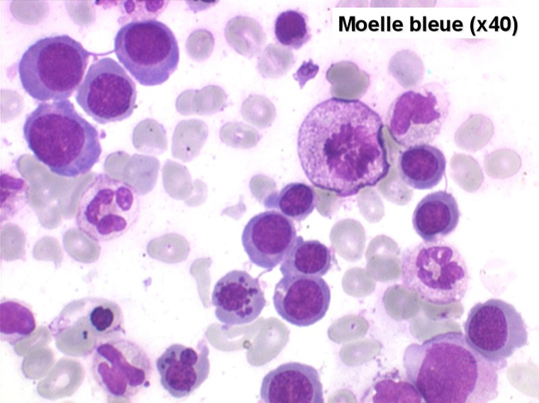 Folate or Folic Acid - Essay Example