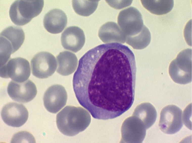 Les Lymphocytes Activés